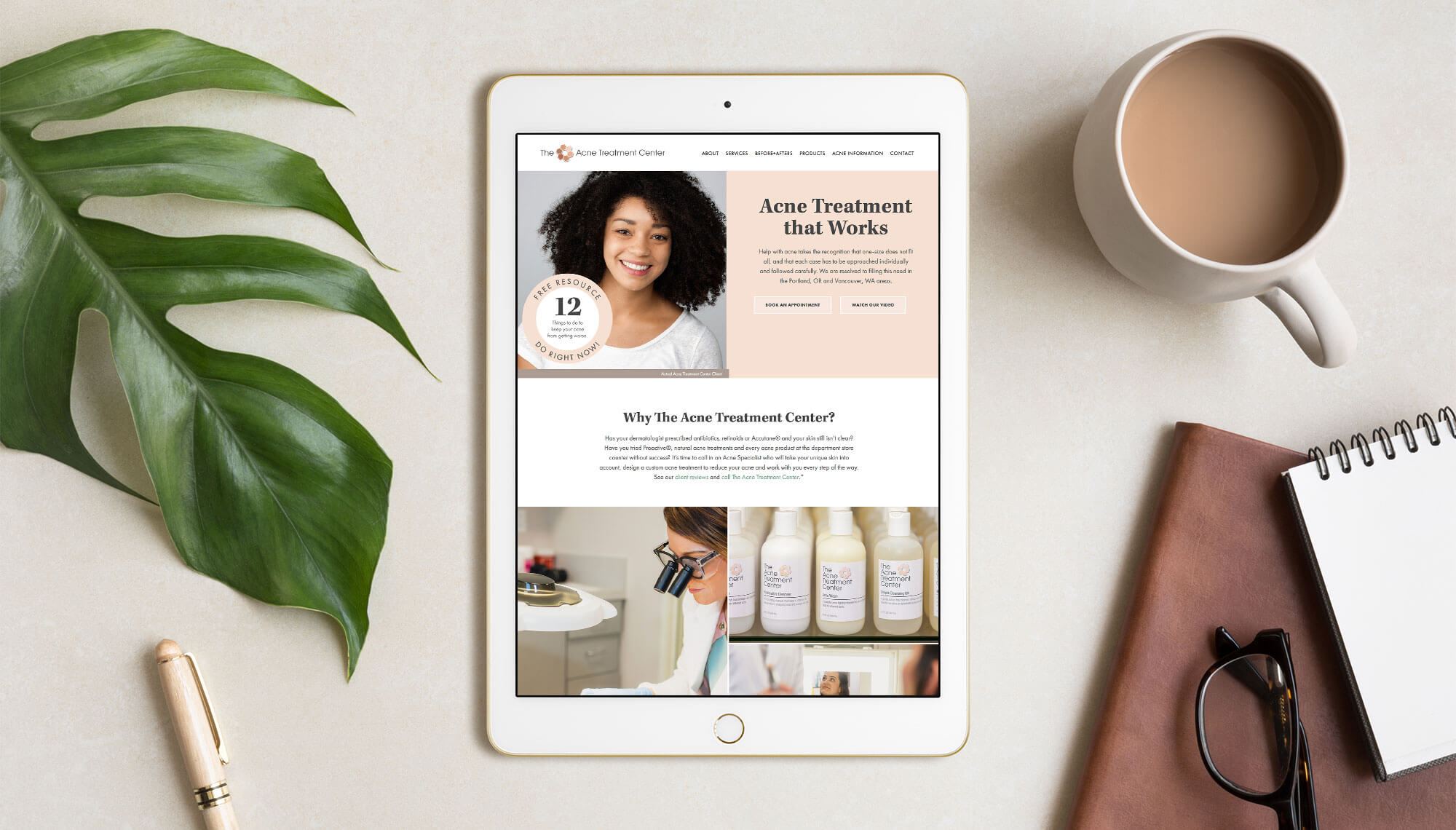 Acne Treatment Center Website Design
